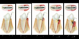 stadii-razvitiya-parodontita (1)