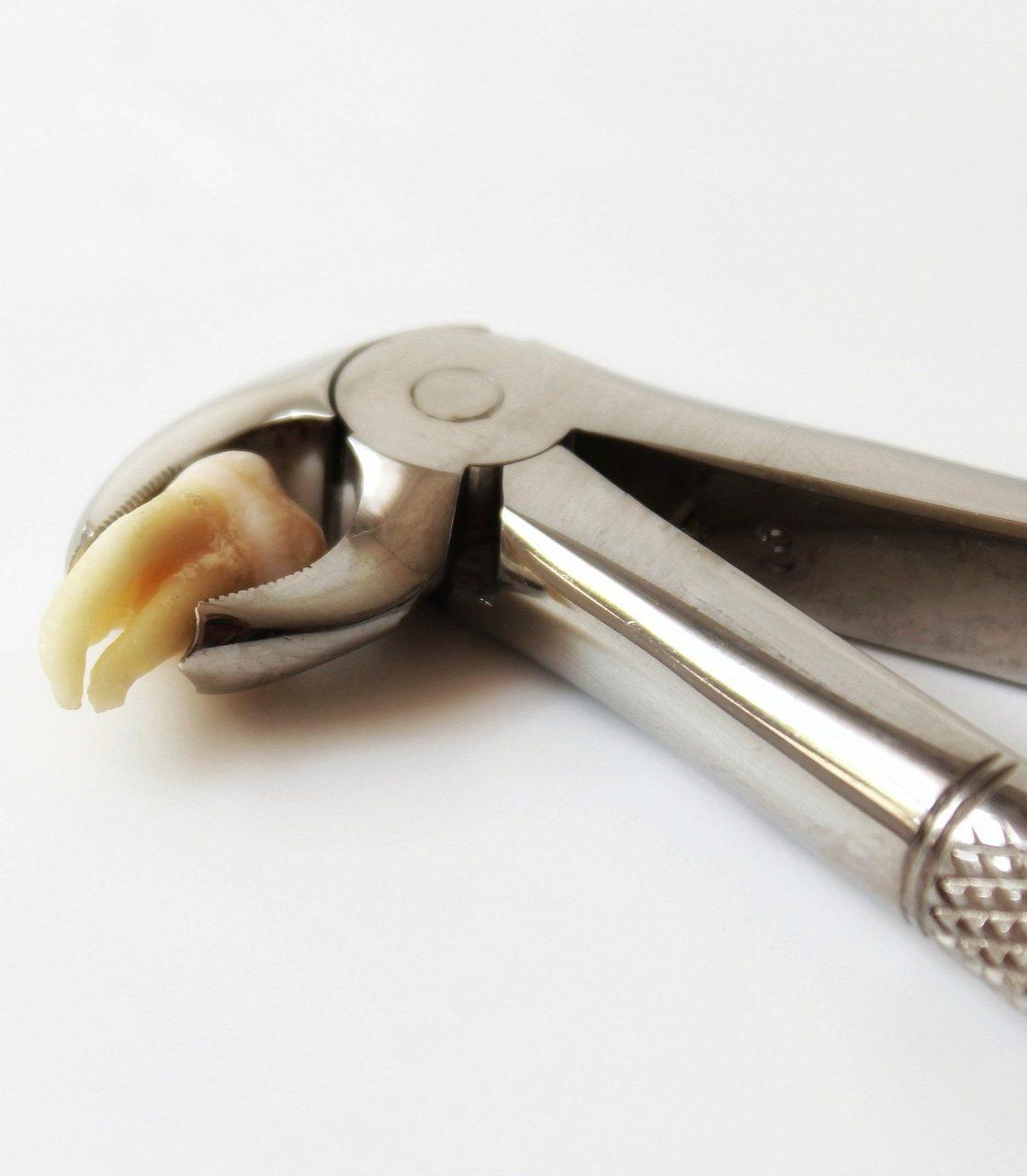 https://lira-clinic.com.ua/wp-content/uploads/2018/07/tooth-3492645_1920-e1534918858701.jpg?id=5804